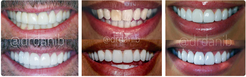 Before After Photos of Porcelain Veneers