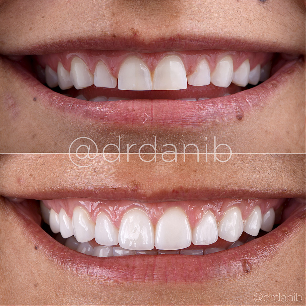 Porcelain Veneers in Los Angeles